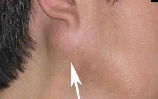 Мукоцеле (слизистая киста) на губе: как проявляется болезнь, симптомы и лечение