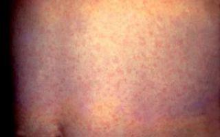 Причины появления сыпи на теле: что провоцирует и как быстро снять покраснение?