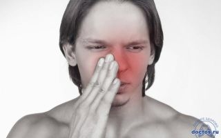 Причины появления ран на носу и вокруг него, которые не заживают, что делать, как избавиться?
