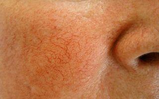 Косметические и медикаментозные средства от купероза на лице