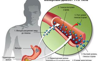 Инсулинозависимый сахарный диабет 2 и 1 типа: МКБ-10, инвалидность и лечение