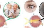 Зрение при сахарном диабете 2 и 1 типа: почему ухудшается, как сохранить и восстановить, коррекция
