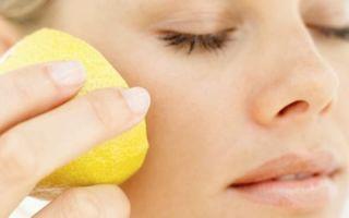 Причины появления пятен на коже: домашние и народные средства для лечения