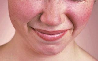 Купероз на лице: симптомы, причины, лечение медикаментами, косметическими средствами и уход в салоне