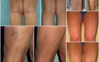 Лечение варикоза лазером: цена, отзывы, показания и противопоказания