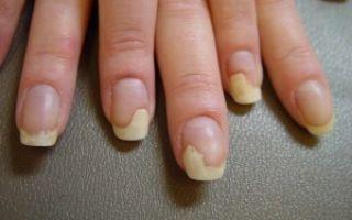 В росшие ногти при сахарном диабете на ногах: грибок, чернеют — лечение