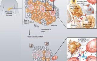 Гипогликемия: симптомы, МКБ-10, что это такое, первая помощь, развитие, причины, последствия и лечение