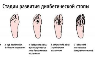 Прыщи при сахарном диабете: на теле, спине ногах — лечение