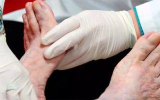 Ноги при сахарном диабете (пальцы, стопы): лечение ран, язв, пятен и других болезней
