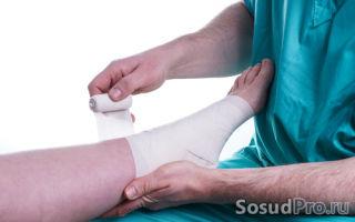 Тромбофлебит нижних конечностей: симптомы, причины, виды и лечение