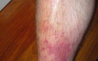 Чешутся ноги ниже колен: о чем говорит симптом возникновения зуда, как устранить неприятное ощущение?