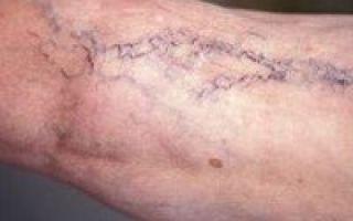 Ретикулярный варикоз нижних конечностей: признаки, лечение, МКБ-10