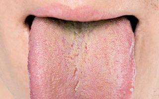 Что означает оранжевый налет на языке: стоит ли паниковать?