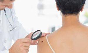 Появляются темные пятна на груди, шеи и туловище, что это означает и как избавиться?
