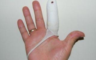 Сильный ушиб пальца до посинения ногтя: первая помощь