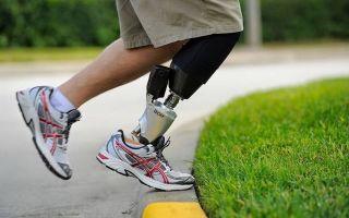 Ампутация при диабете сахарном: гангрена пальцев ног, реабилитация и заживление