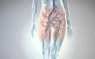 Варикозное расширение вен малого таза у женщин