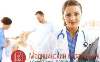 Несахарный диабет: симптомы, диагностика, лечение, МКБ-10, причины у женщин, мужчин и детей