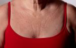 Почему появляются морщины на груди: как избавиться?
