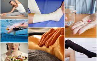 Операция на варикозное расширение вен на ногах: цены, последствия, отзывы, виды