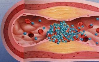 Тромбитал или кардиомагнил: что лучше и в чем разница, отличие составов и отзывы врачей