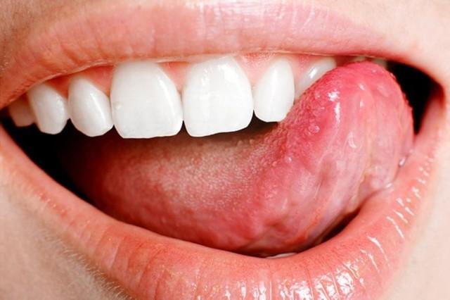 Прыщи на языке – фото, причины и лечение