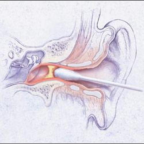 Зуд в ушах – причины и лечение в домашних условиях