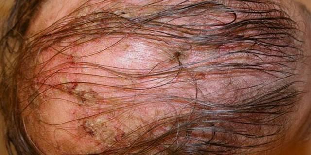 Корка на голове – виды, причины, фото, лечение, домашние средства