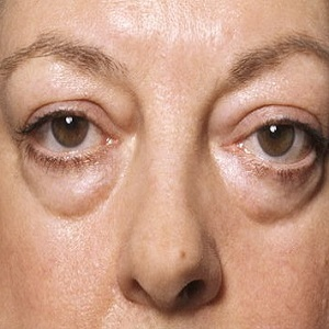 Отек лица – фото, причины и как его снять
