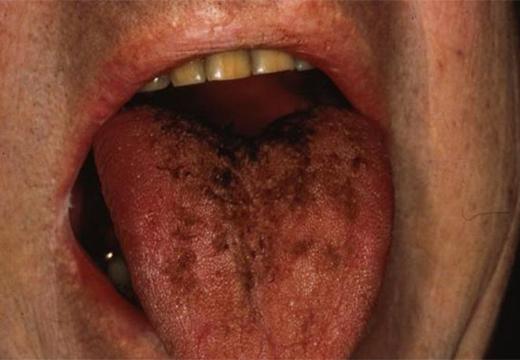 Темные пятна и точк на языке – фото, причины и лечение