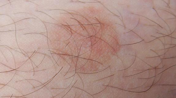 Темные пятна на шее, груди и туловище – причины, фото и как избавиться
