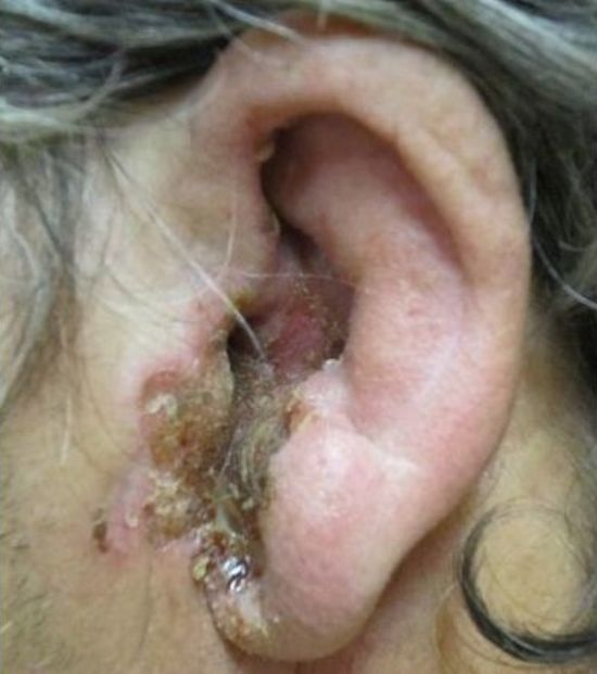 Болячки на ушах у человека – фото, причины, лечение