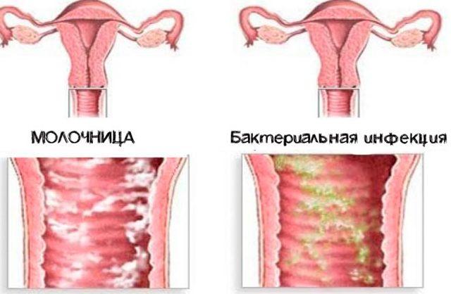 Цвет влагалищных выделений у женщин – нормальный и тревожный