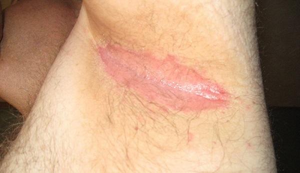 Сыпь или пятна в области подмышек – фото, причины, лечение
