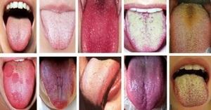 Желтый налет на языке – фото, симптомы, причины, лечение