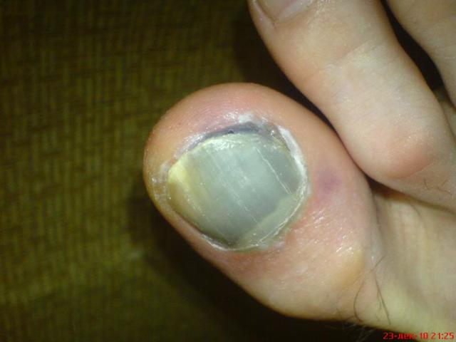 Плохие, поврежденные ногти – причины, фото, лечение