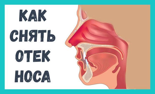 Опухла ноздря – причины, фото, лечение в домашних условиях