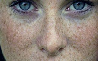 Пигментные пятна на теле: коричневые, темные и светлые, причины и лечение, на грудине и спине