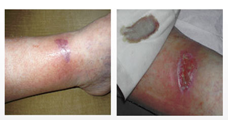 Волдыри на ступнях ног: причины появления водянистых пузырьков и их лечение
