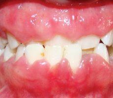 Опухание десен – причины, фото и лечение
