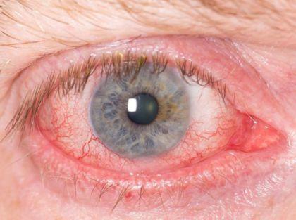 Глазной клеш (демодекс) – фото, факты, симптомы, лечение