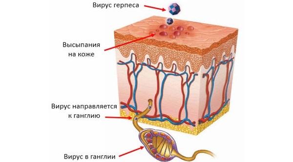 Герпес на носу и под ним – причины, фото и быстрое лечение