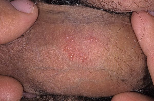 Болячки на половых органах женщины – виды, причины, фото, лечение