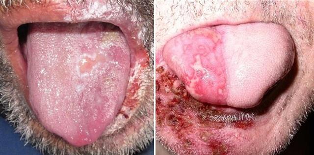 Круглые пятна на языке - Стоматолог