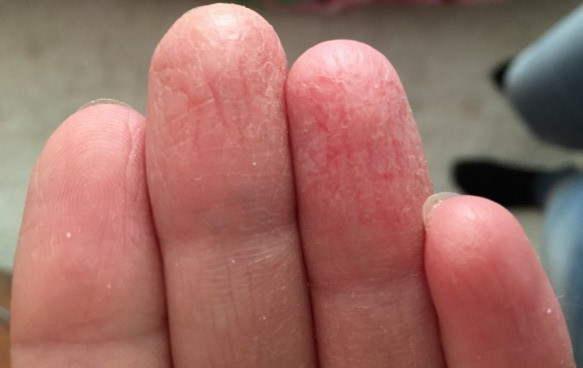 Трескаются кончики пальцев на руках – причины, фото, лечение
