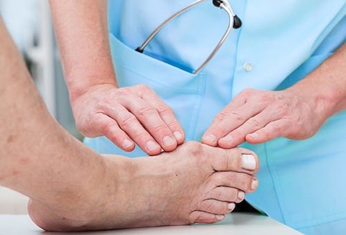 Шишки, бугорки на нижней части ноги – фото, причины, лечение