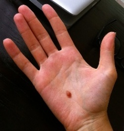 Родимые пятна на руках и в подмышках – фото, причины, значение
