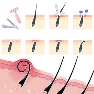 Шрамы от вросших волос и как от них избавиться