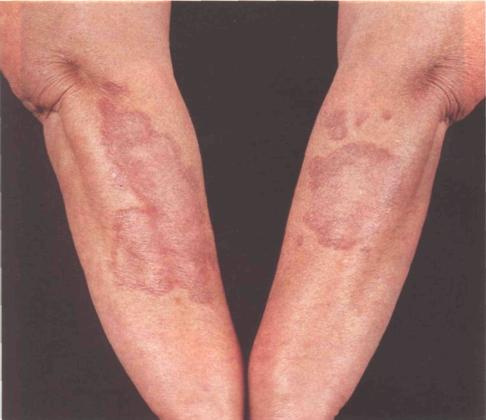 Прыщи и бугорки на локтях – причины, фото, лечение