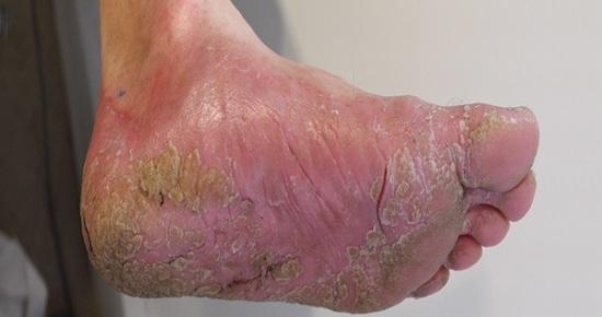Болячки на ногах (язвы, пузыри) – фото, причины, домашние средства